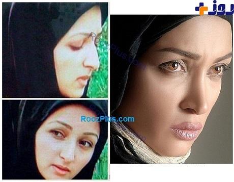 عکسی از بازیگر زن قبل و بعد از عمل زیبایی!
